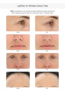 Facial Elements - Before and After